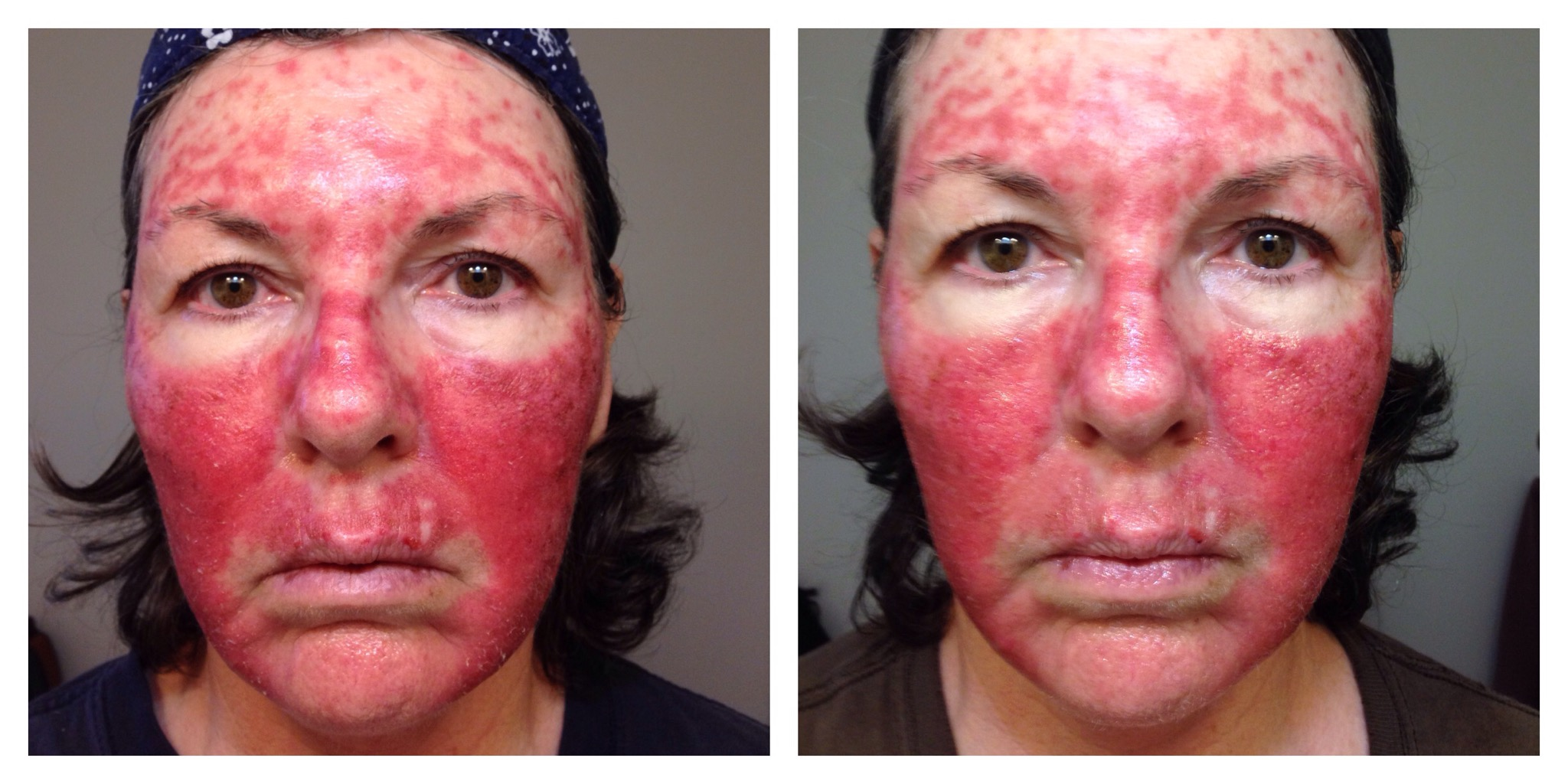 skin cancer treatment cream